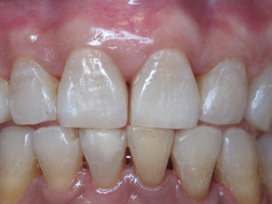 Porcelain Crowns1